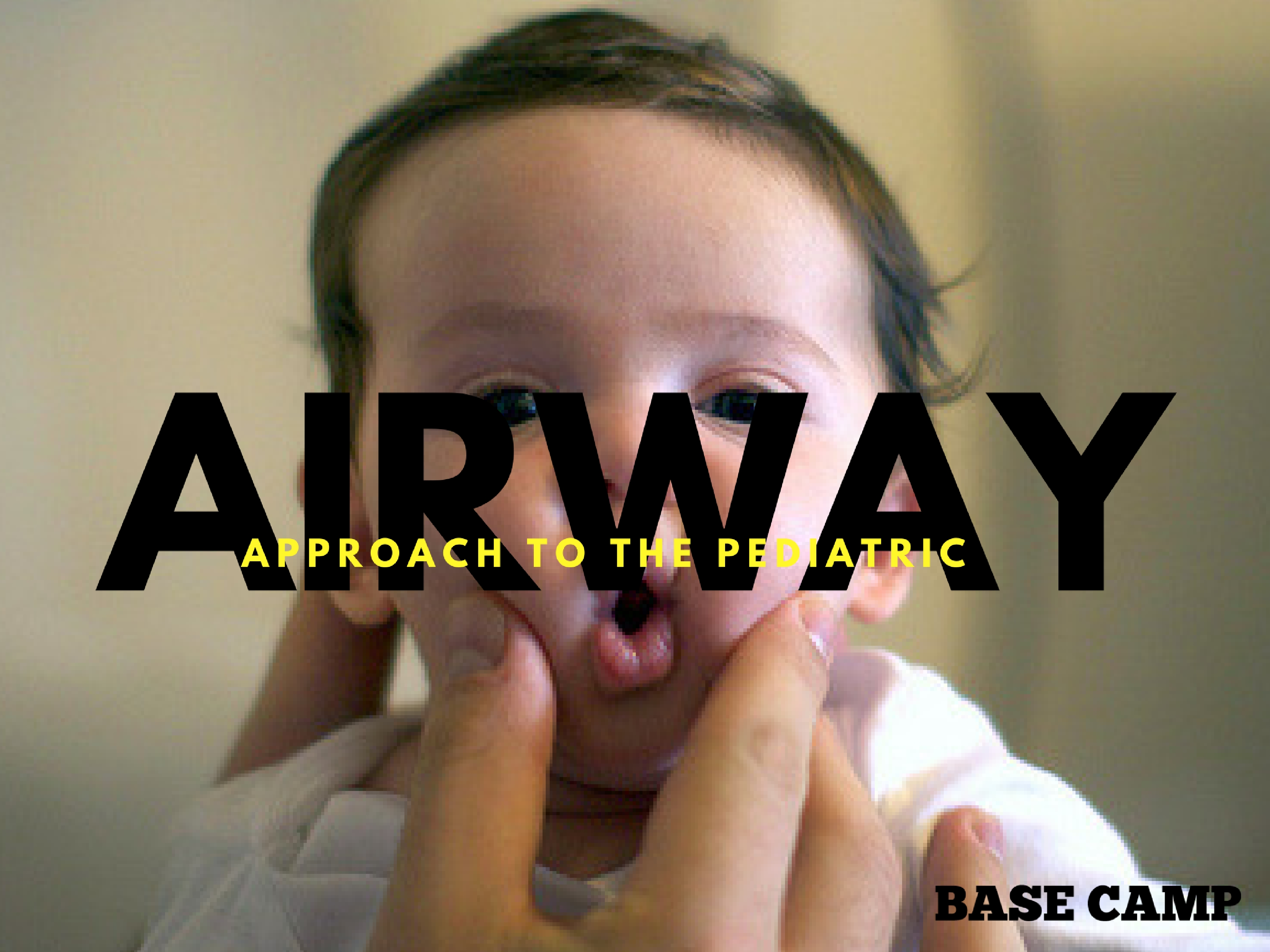 Approach To Pediatric Airway