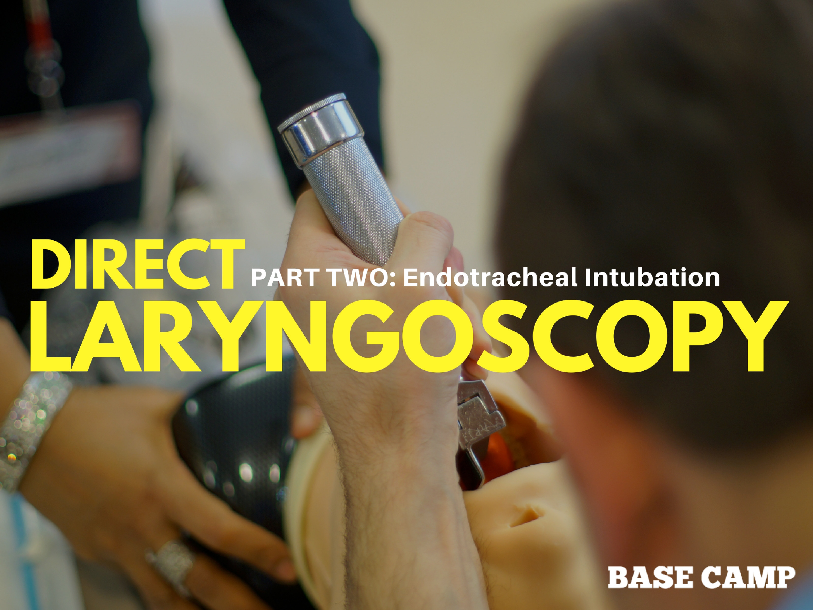 Direct Laryngoscopy 2