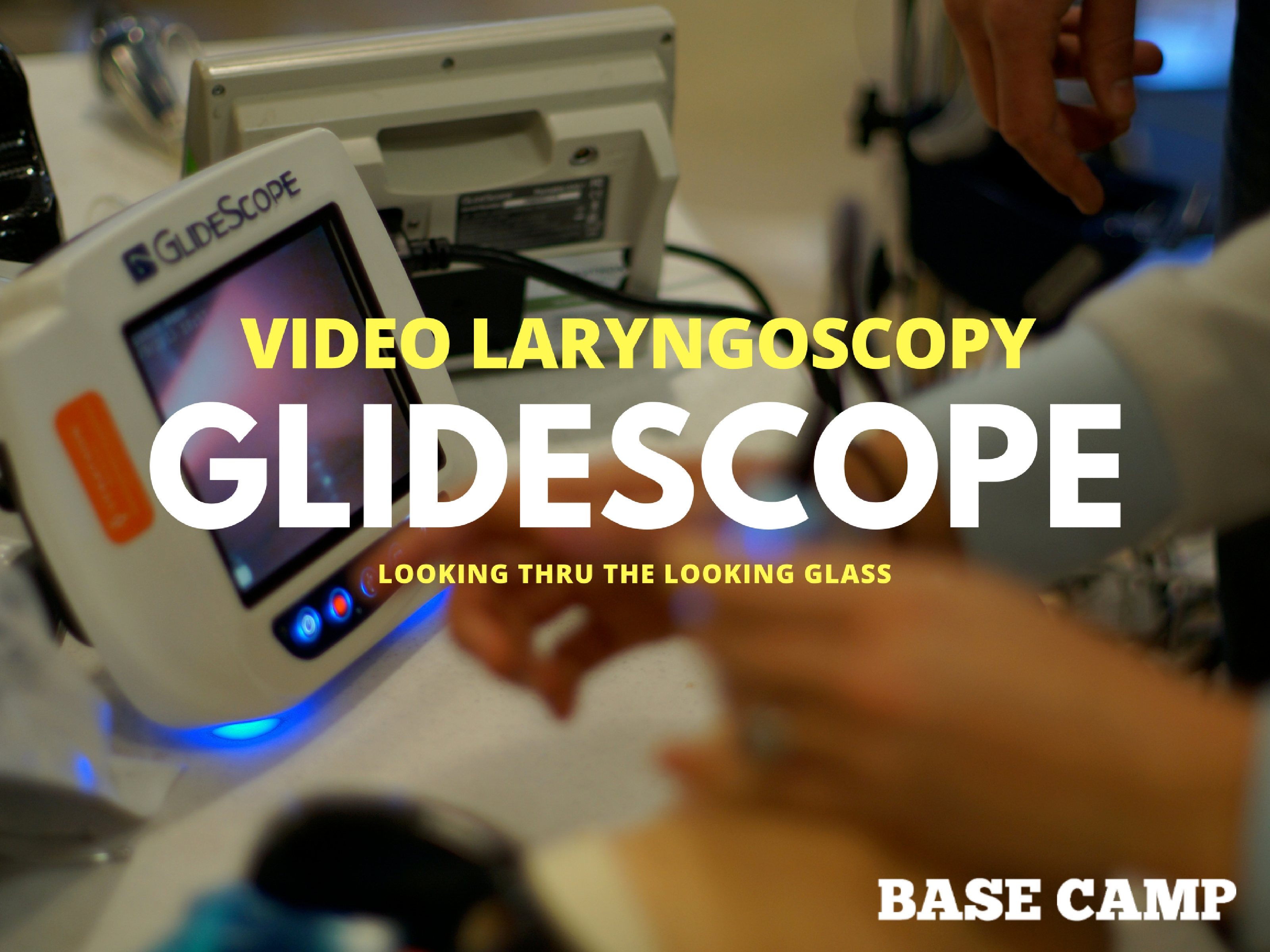 GlideScope Video Laryngoscopy