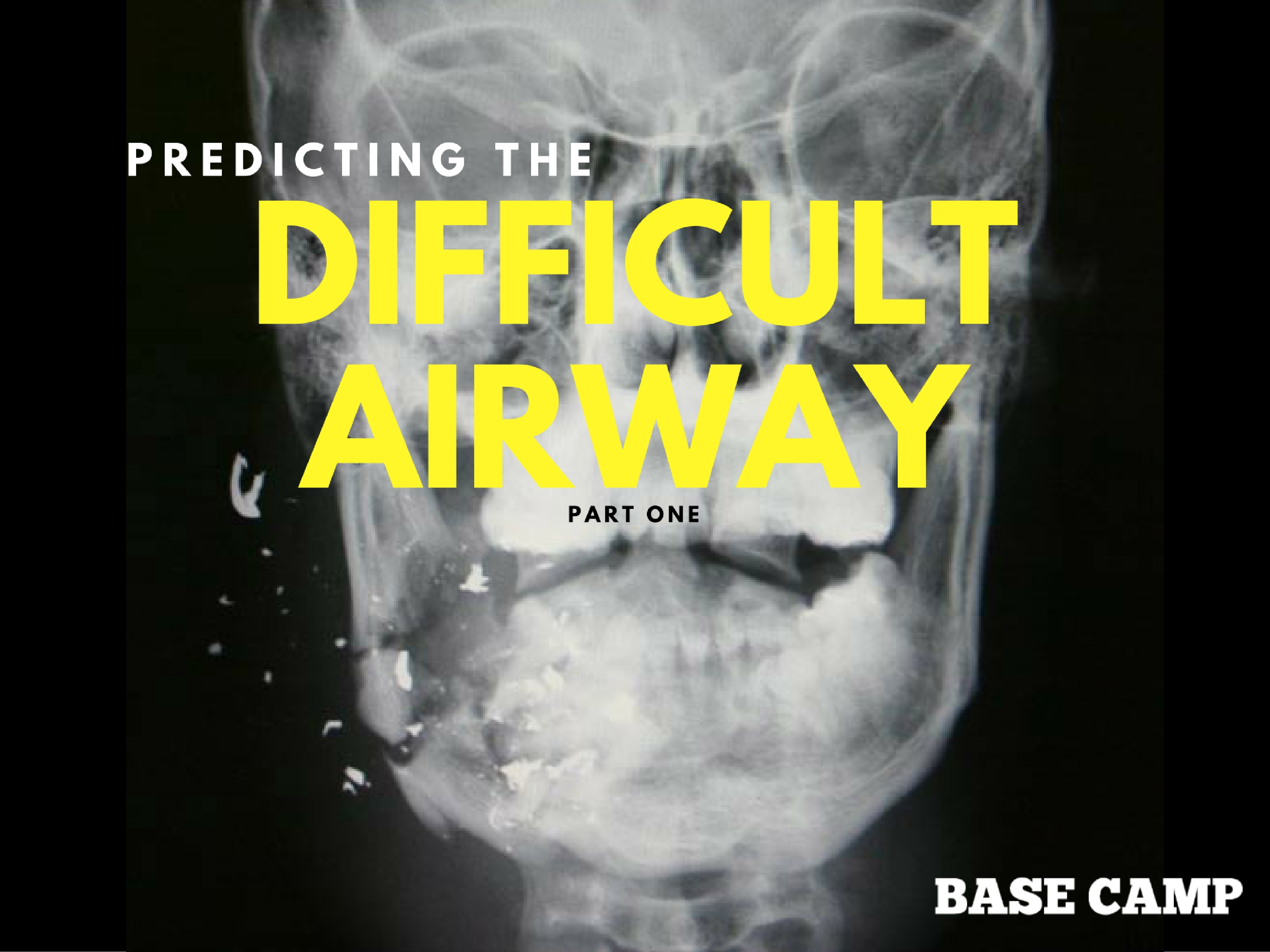Predicting The Difficult Airway 1