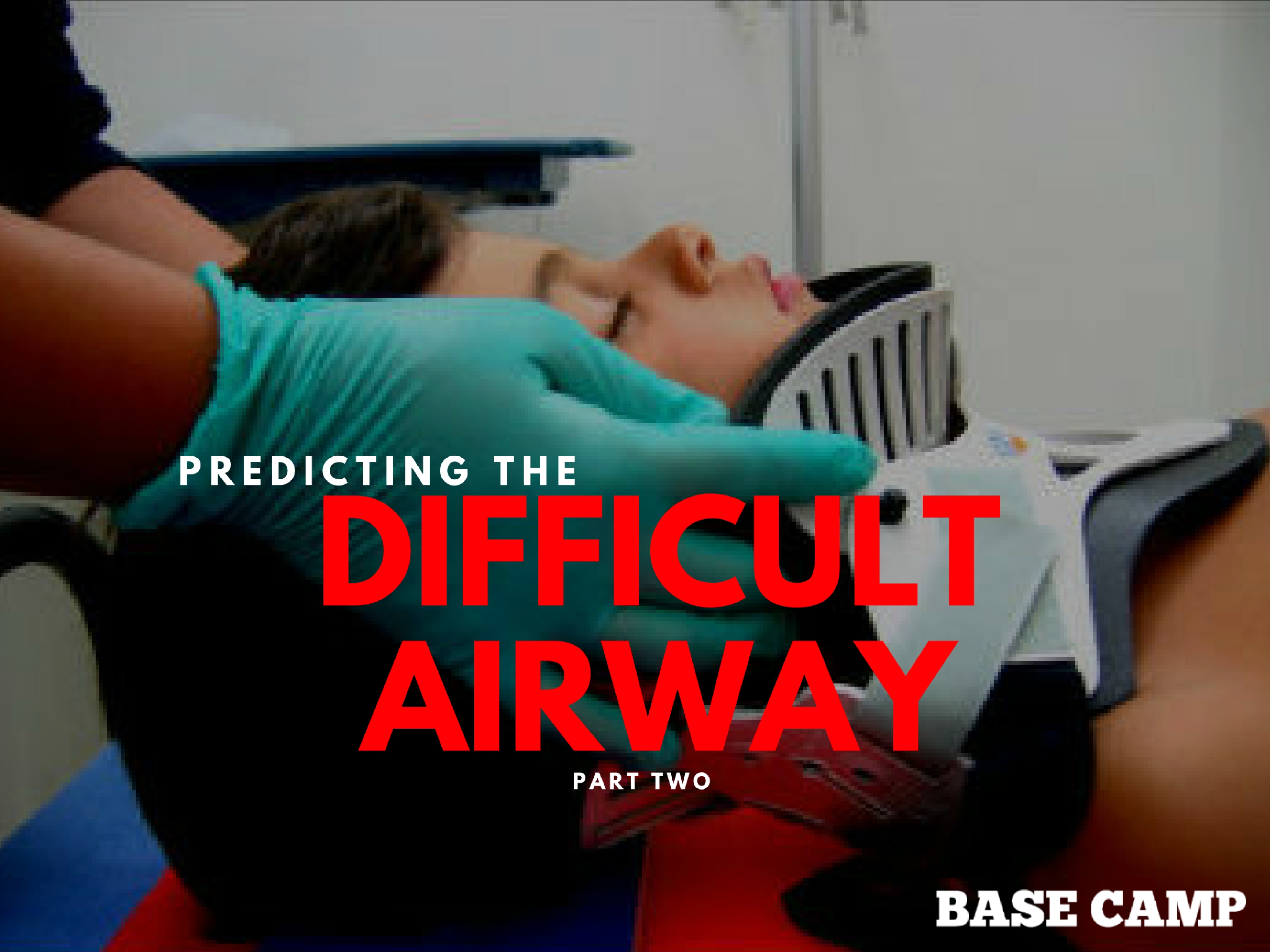 Predicting The Difficult Airway 2